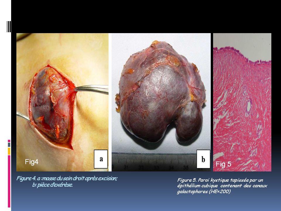 III- DISCUSSION Laugmentation Temporaire Du volume du sein chez le nouveau-né eutrophique est habituelle.