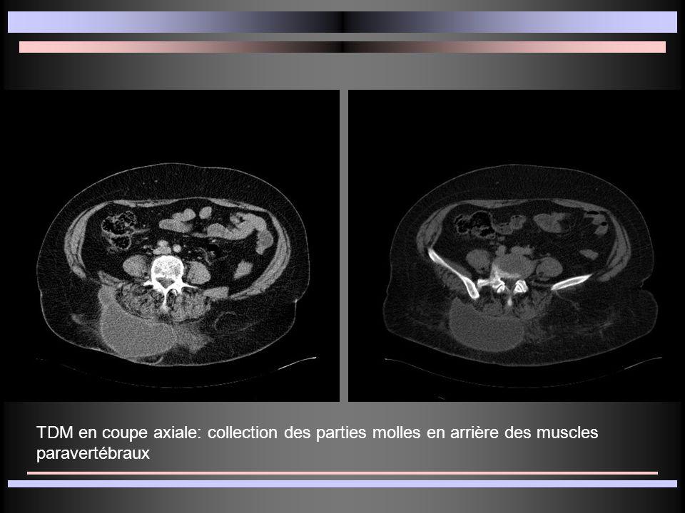 TDM en coupe axiale: collection des parties molles en arrière des muscles paravertébraux