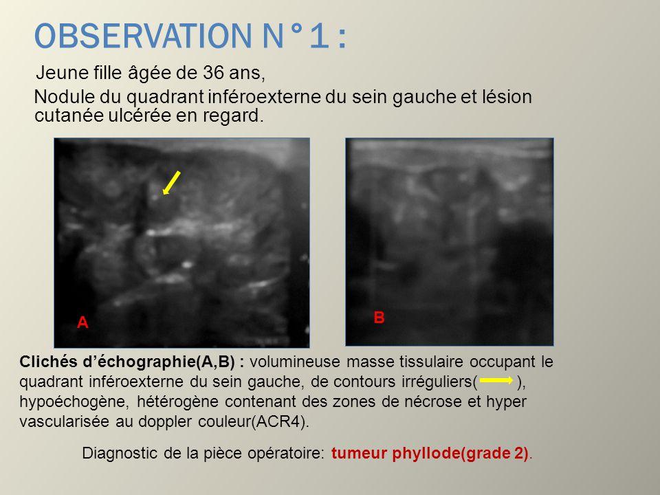 OBSERVATION N°1 : Jeune fille âgée de 36 ans, Nodule du quadrant inféroexterne du sein gauche et lésion cutanée ulcérée en regard. Clichés déchographi