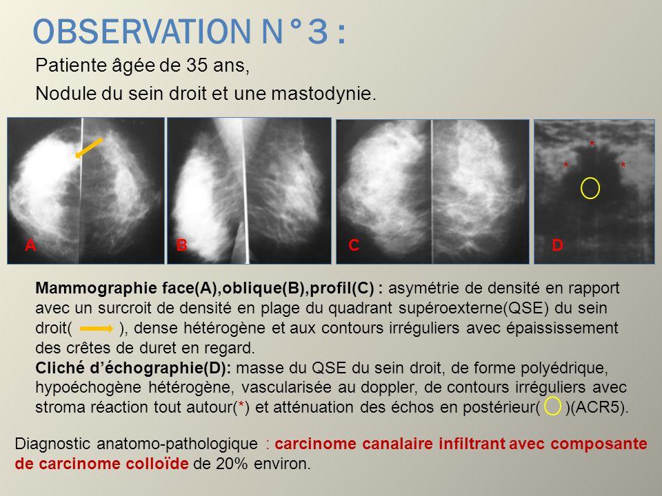 OBSERVATION N°3 : Patiente âgée de 35 ans, Nodule du sein droit et une mastodynie. Mammographie face(A),oblique(B),profil(C) : asymétrie de densité en