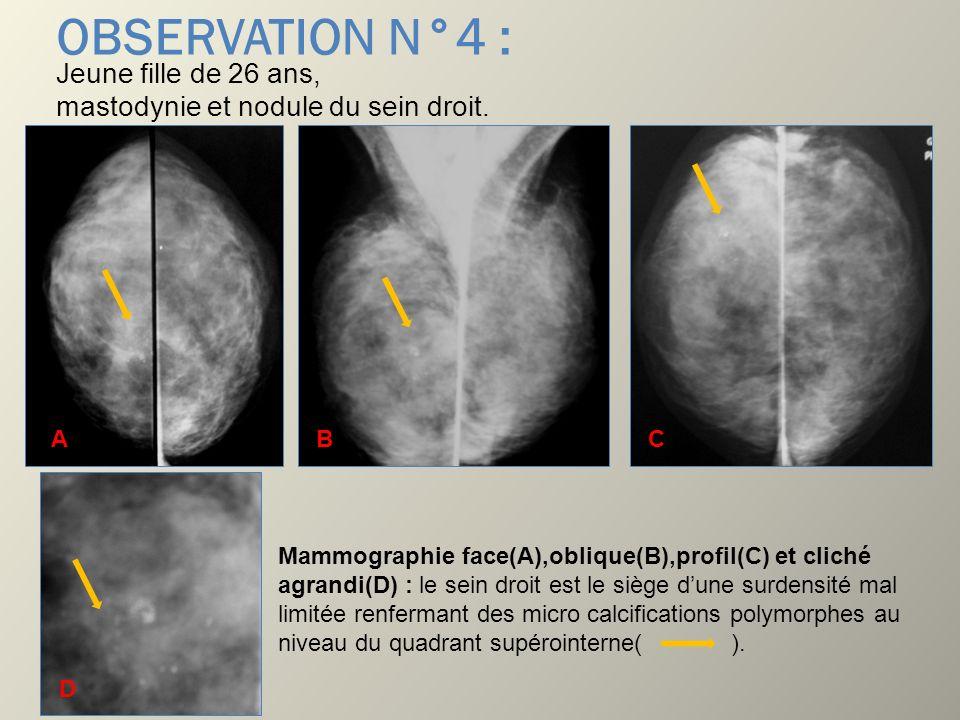 OBSERVATION N°4 : Jeune fille de 26 ans, mastodynie et nodule du sein droit. Mammographie face(A),oblique(B),profil(C) et cliché agrandi(D) : le sein