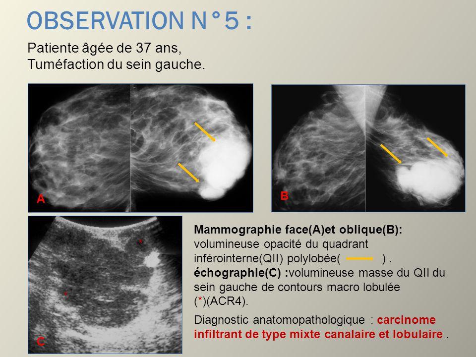OBSERVATION N°5 : Patiente âgée de 37 ans, Tuméfaction du sein gauche. Mammographie face(A)et oblique(B): volumineuse opacité du quadrant inférointern