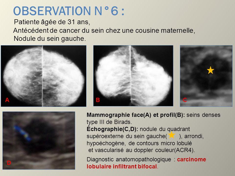 OBSERVATION N°6 : Patiente âgée de 31 ans, Antécédent de cancer du sein chez une cousine maternelle, Nodule du sein gauche. Mammographie face(A) et pr
