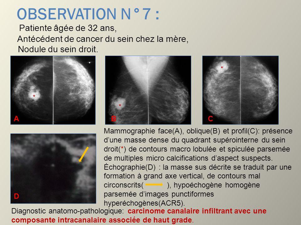 OBSERVATION N°7 : Patiente âgée de 32 ans, Antécédent de cancer du sein chez la mère, Nodule du sein droit. Mammographie face(A), oblique(B) et profil