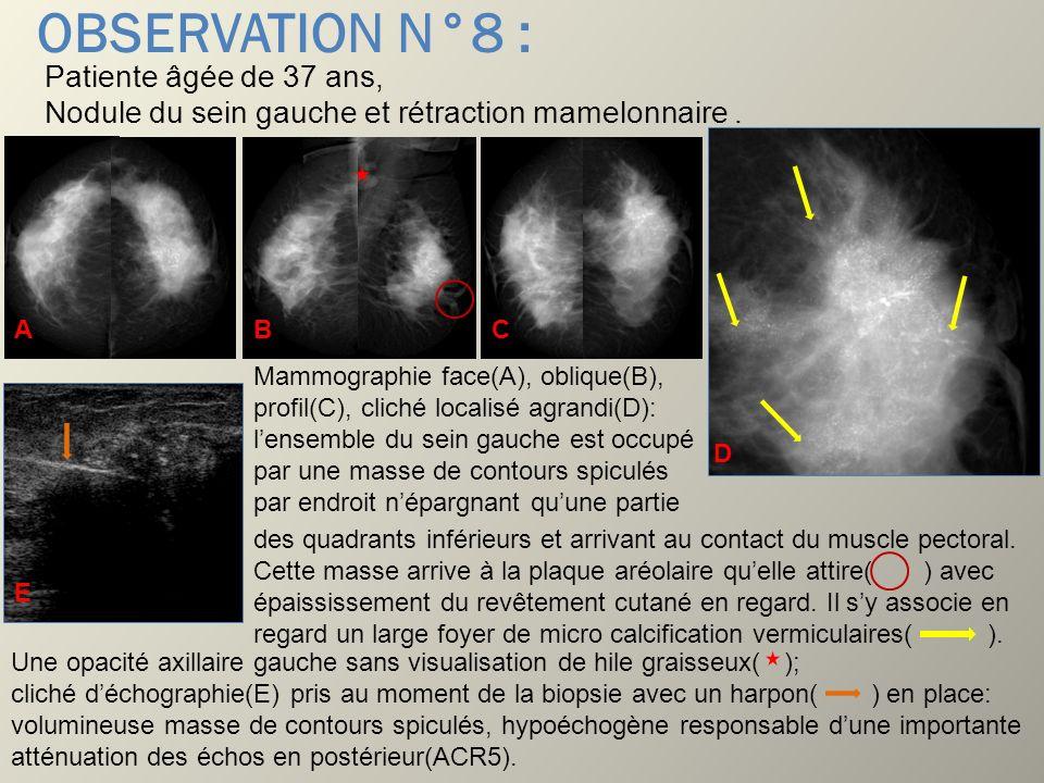 OBSERVATION N°8 : Patiente âgée de 37 ans, Nodule du sein gauche et rétraction mamelonnaire. Mammographie face(A), oblique(B), profil(C), cliché local