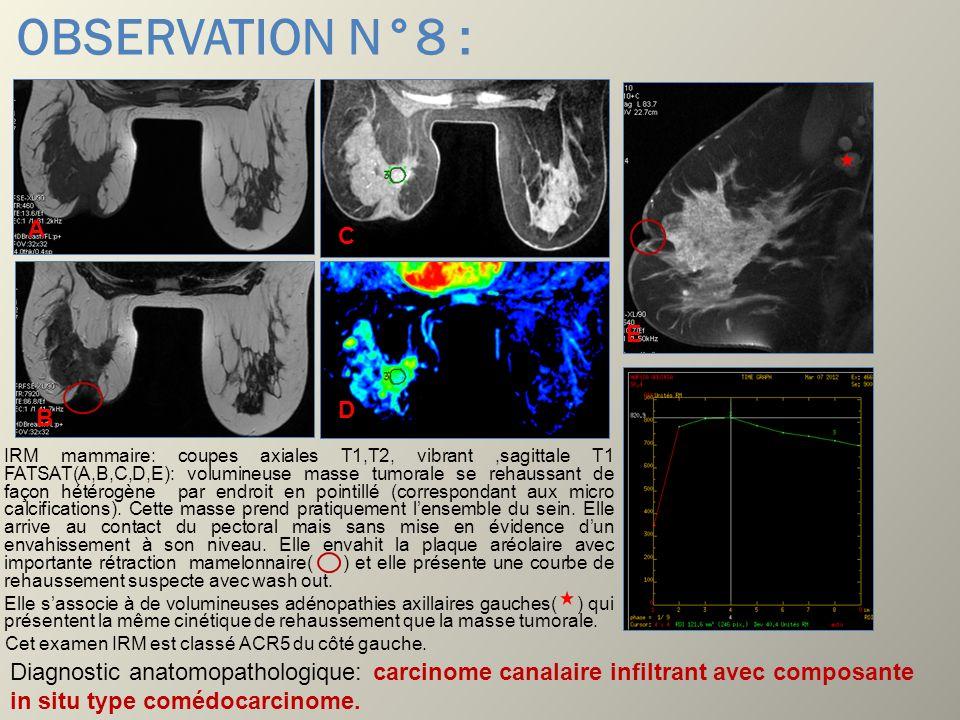 OBSERVATION N°8 : IRM mammaire: coupes axiales T1,T2, vibrant,sagittale T1 FATSAT(A,B,C,D,E): volumineuse masse tumorale se rehaussant de façon hétéro
