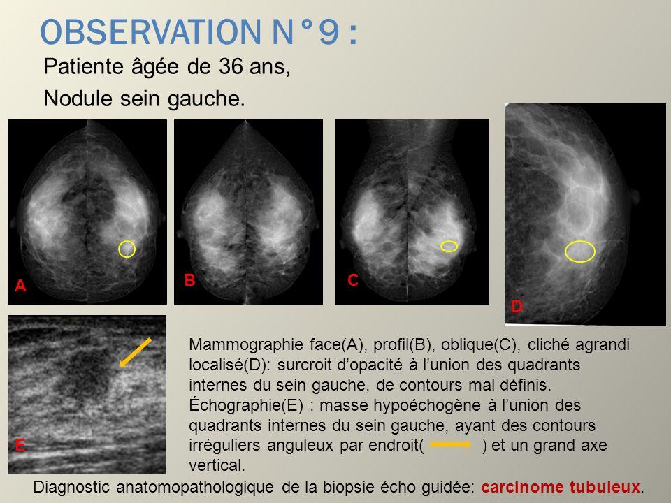 OBSERVATION N°9 : Patiente âgée de 36 ans, Nodule sein gauche. Mammographie face(A), profil(B), oblique(C), cliché agrandi localisé(D): surcroit dopac