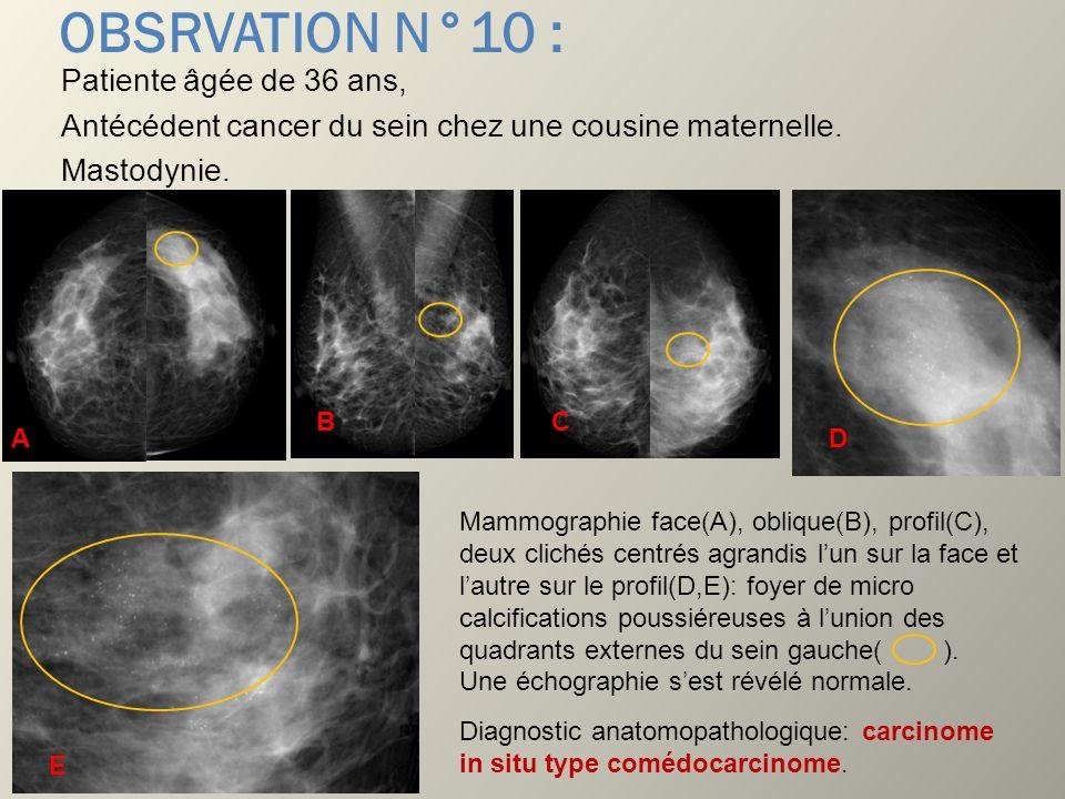 OBSRVATION N°10 : Patiente âgée de 36 ans, Antécédent cancer du sein chez une cousine maternelle. Mastodynie. Mammographie face(A), oblique(B), profil
