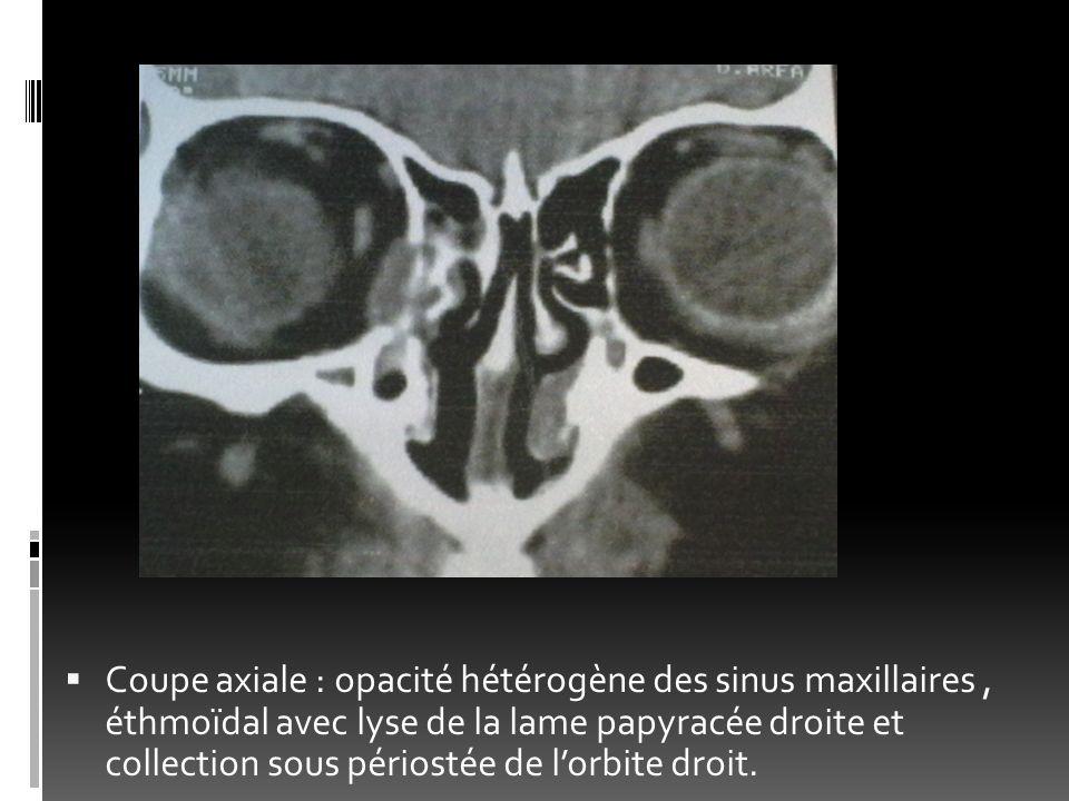 Coupe axiale : opacité hétérogène des sinus maxillaires, éthmoïdal avec lyse de la lame papyracée droite et collection sous périostée de lorbite droit
