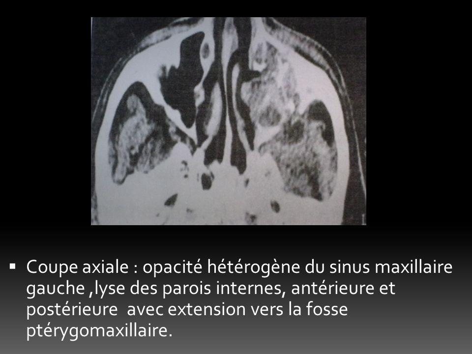 Coupe axiale : opacité hétérogène du sinus maxillaire gauche,lyse des parois internes, antérieure et postérieure avec extension vers la fosse ptérygom