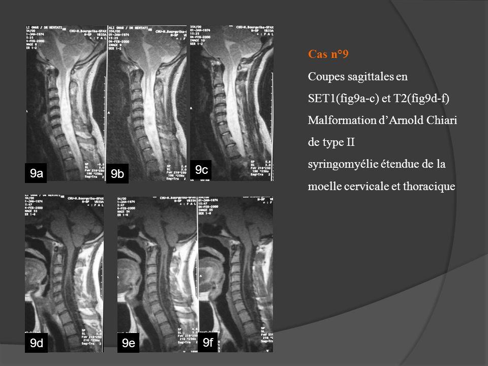 Cas n°9 Coupes sagittales en SET1(fig9a-c) et T2(fig9d-f) Malformation dArnold Chiari de type II syringomyélie étendue de la moelle cervicale et thora