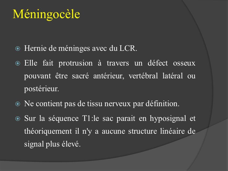 Méningocèle Hernie de méninges avec du LCR. Elle fait protrusion à travers un défect osseux pouvant être sacré antérieur, vertébral latéral ou postéri