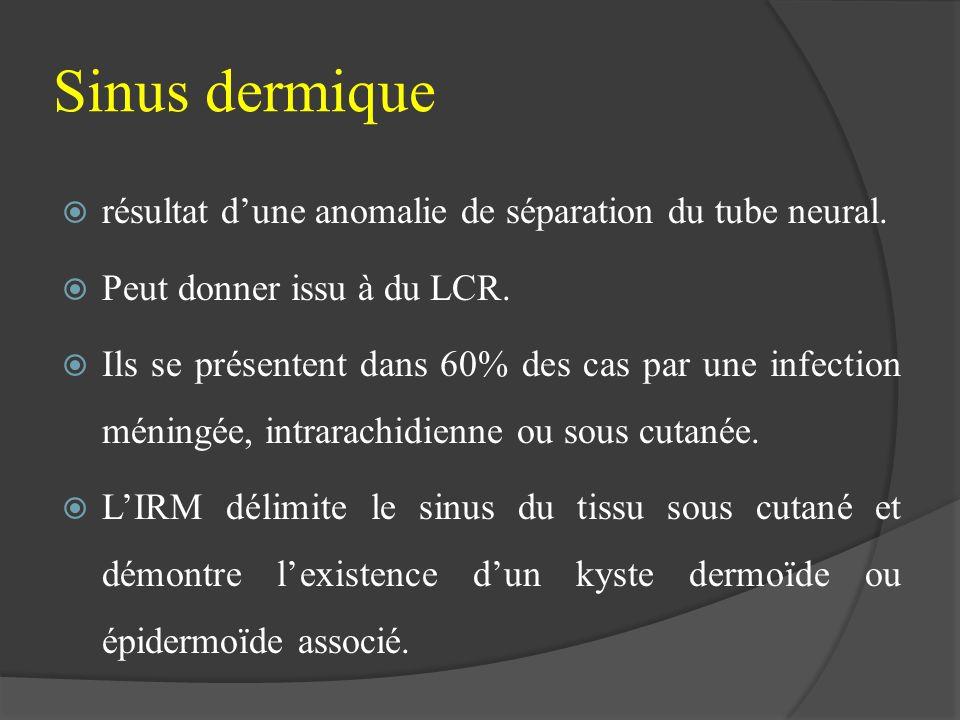 Sinus dermique résultat dune anomalie de séparation du tube neural. Peut donner issu à du LCR. Ils se présentent dans 60% des cas par une infection mé