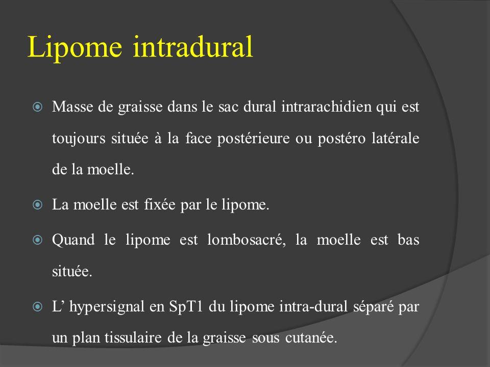 Lipome intradural Masse de graisse dans le sac dural intrarachidien qui est toujours située à la face postérieure ou postéro latérale de la moelle. La