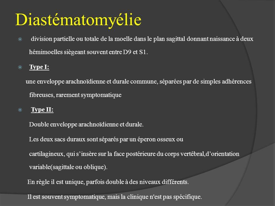Diastématomyélie division partielle ou totale de la moelle dans le plan sagittal donnant naissance à deux hémimoelles siègeant souvent entre D9 et S1.