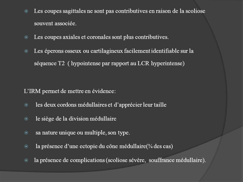 Les coupes sagittales ne sont pas contributives en raison de la scoliose souvent associée. Les coupes axiales et coronales sont plus contributives. Le