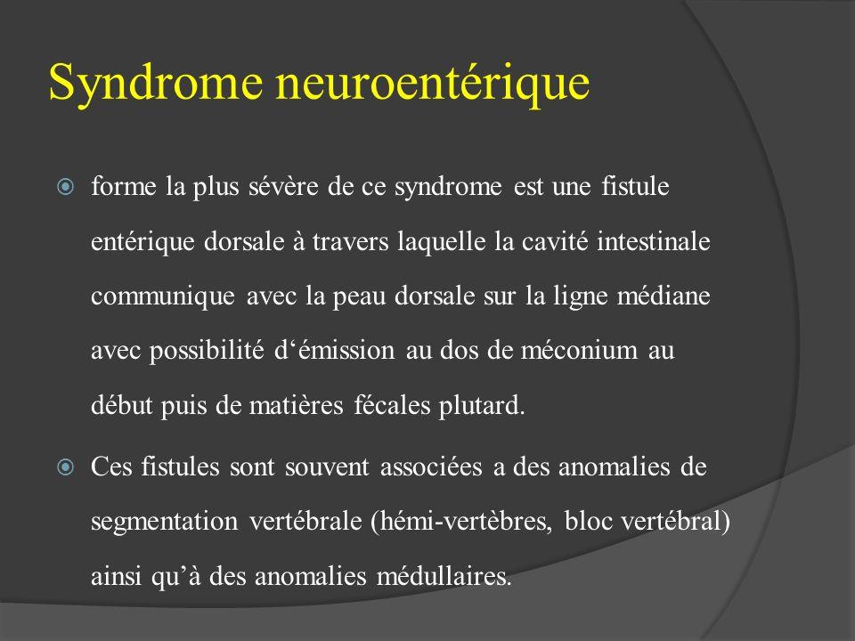 Syndrome neuroentérique forme la plus sévère de ce syndrome est une fistule entérique dorsale à travers laquelle la cavité intestinale communique avec