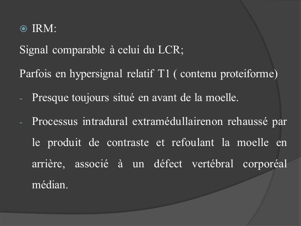 IRM: Signal comparable à celui du LCR; Parfois en hypersignal relatif T1 ( contenu proteiforme) - Presque toujours situé en avant de la moelle. - Proc