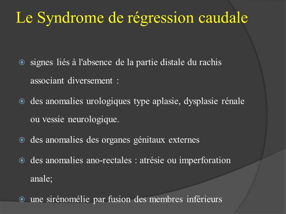 Le Syndrome de régression caudale signes liés à l'absence de la partie distale du rachis associant diversement : des anomalies urologiques type aplasi