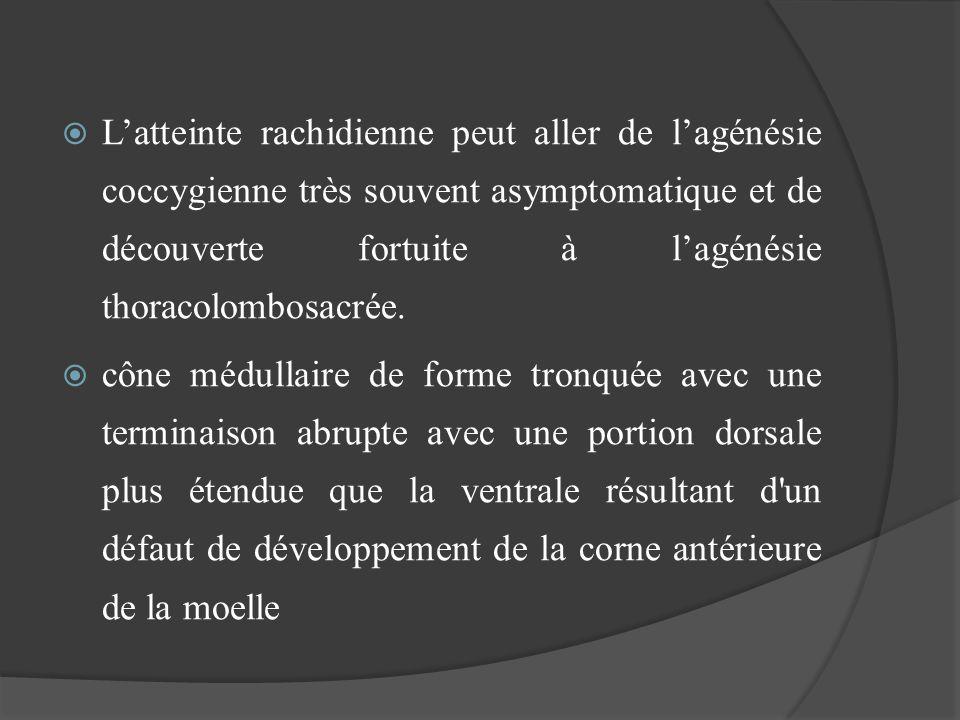 Latteinte rachidienne peut aller de lagénésie coccygienne très souvent asymptomatique et de découverte fortuite à lagénésie thoracolombosacrée. cône m