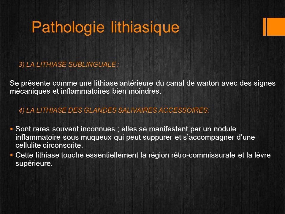 Pathologie lithiasique 3) LA LITHIASE SUBLINGUALE : Se présente comme une lithiase antérieure du canal de warton avec des signes mécaniques et inflamm