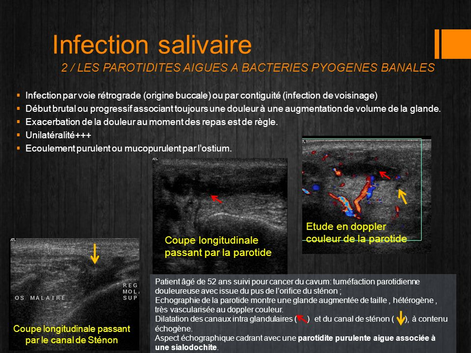 Infection salivaire 2 / LES PAROTIDITES AIGUES A BACTERIES PYOGENES BANALES Infection par voie rétrograde (origine buccale) ou par contiguité (infecti