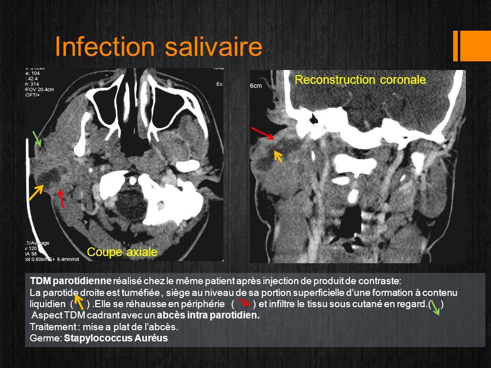 Infection salivaire Coupe axiale Reconstruction coronale TDM parotidienne réalisé chez le même patient après injection de produit de contraste: La par
