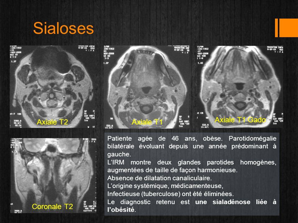Sialoses Axiale T2Axiale T1 Axiale T1 Gado Coronale T2 Patiente agée de 46 ans, obèse. Parotidomégalie bilatérale évoluant depuis une année prédominan