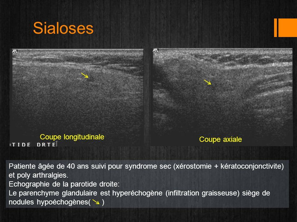 Sialoses Coupe longitudinale Coupe axiale Patiente âgée de 40 ans suivi pour syndrome sec (xérostomie + kératoconjonctivite) et poly arthralgies. Echo