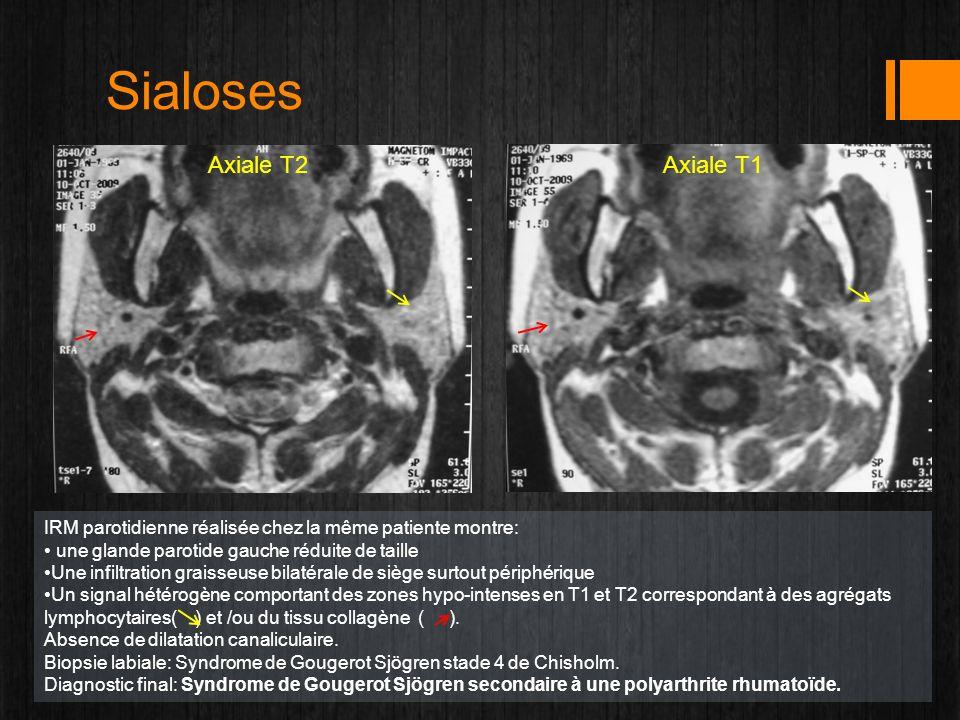 Sialoses Axiale T2Axiale T1 IRM parotidienne réalisée chez la même patiente montre: une glande parotide gauche réduite de taille Une infiltration grai