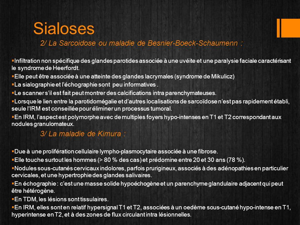 Sialoses 2/ La Sarcoidose ou maladie de Besnier-Boeck-Schaumenn : Infiltration non spécifique des glandes parotides associée à une uvéite et une paral