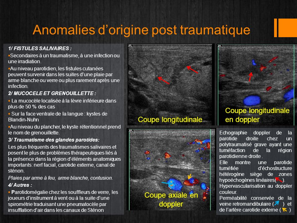 Anomalies dorigine post traumatique 1/ FISTULES SALIVAIRES : Secondaires à un traumatisme, à une infection ou une irradiation. Au niveau parotidien, l