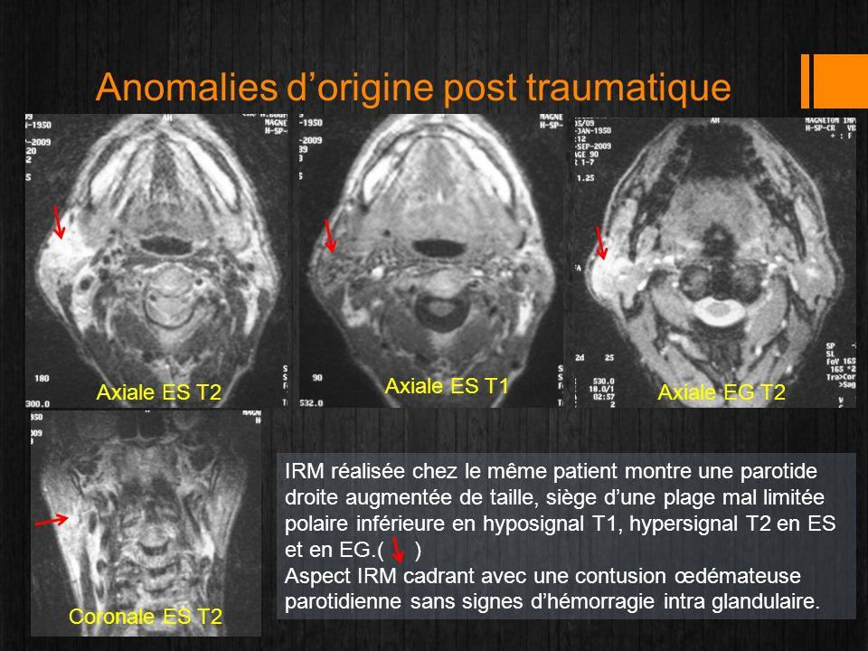 Anomalies dorigine post traumatique Axiale ES T2 Axiale ES T1 Axiale EG T2 Coronale ES T2 IRM réalisée chez le même patient montre une parotide droite