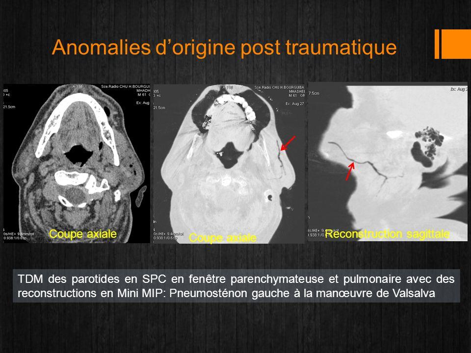 TDM des parotides en SPC en fenêtre parenchymateuse et pulmonaire avec des reconstructions en Mini MIP: Pneumosténon gauche à la manœuvre de Valsalva