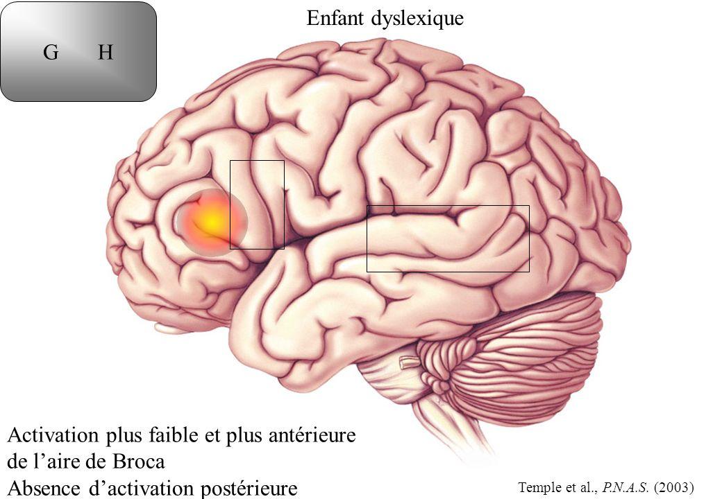 Enfant dyslexique G H Activation plus faible et plus antérieure de laire de Broca Absence dactivation postérieure Temple et al., P.N.A.S.