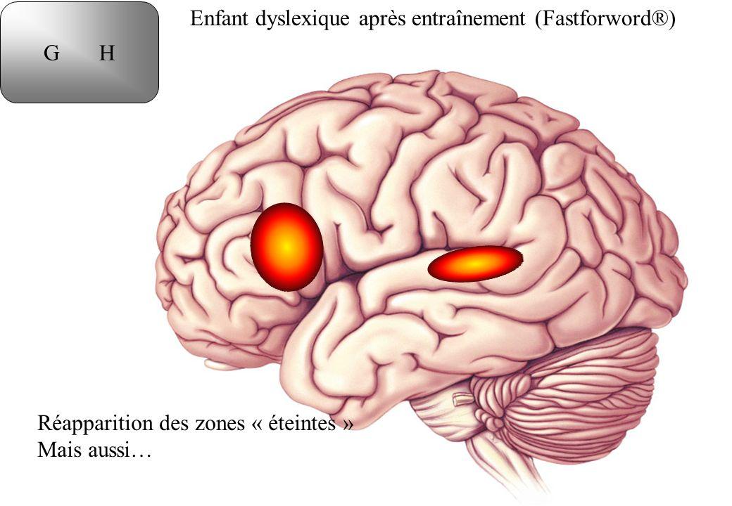Enfant dyslexique après entraînement (Fastforword®) G H Réapparition des zones « éteintes » Mais aussi…