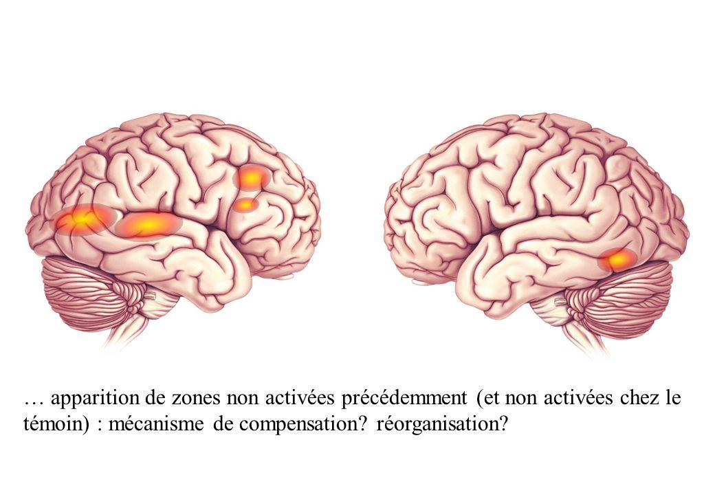 … apparition de zones non activées précédemment (et non activées chez le témoin) : mécanisme de compensation.