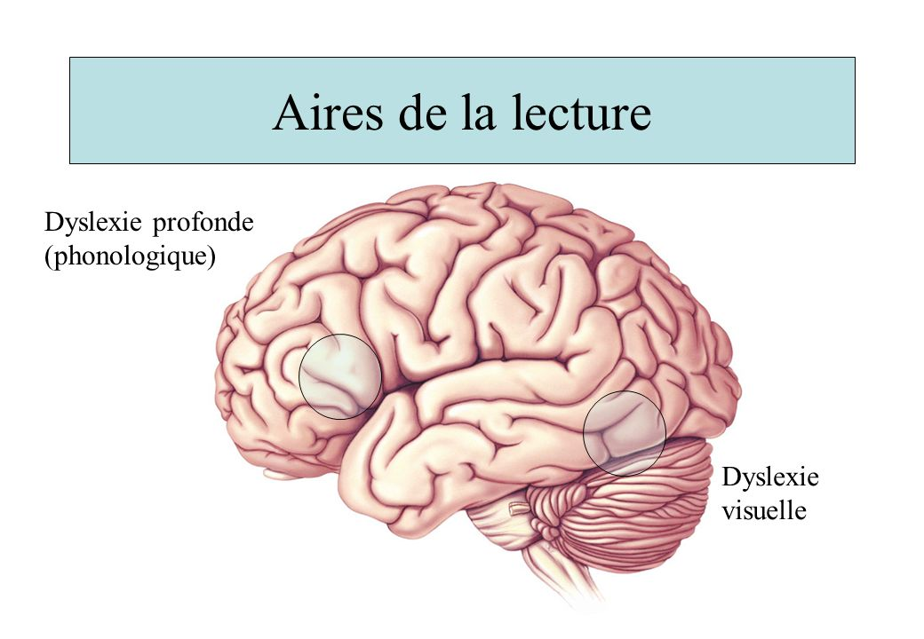 Aires de la lecture Dyslexie profonde (phonologique) Dyslexie visuelle