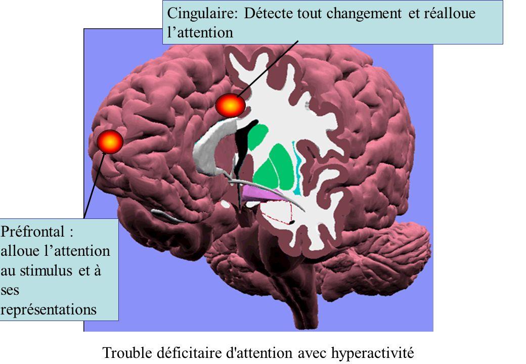 Cingulaire: Détecte tout changement et réalloue lattention Préfrontal : alloue lattention au stimulus et à ses représentations Trouble déficitaire d attention avec hyperactivité