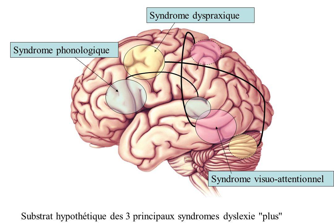 Syndrome phonologique Syndrome dyspraxique Syndrome visuo-attentionnel Substrat hypothétique des 3 principaux syndromes dyslexie