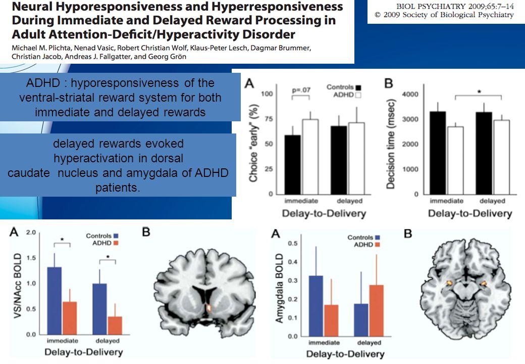 TDAH : hypoactivation du striatum ventral lors de l'anticipation de la récompense