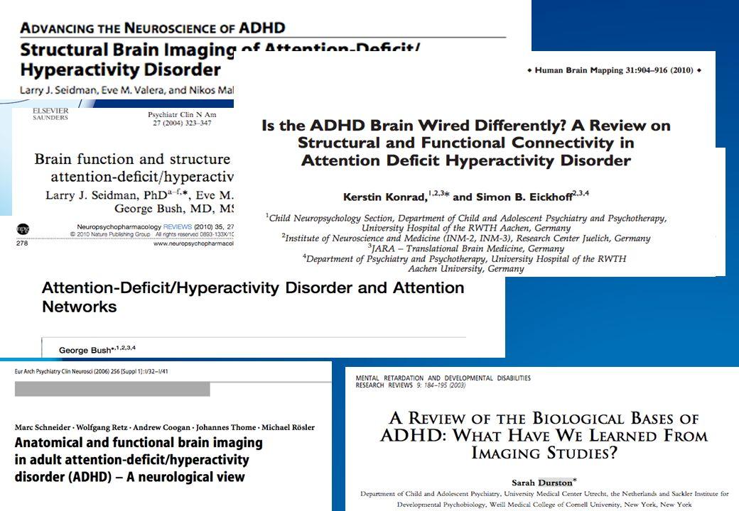 TDAH : hypoactivation du striatum ventral lors de l anticipation de la récompense