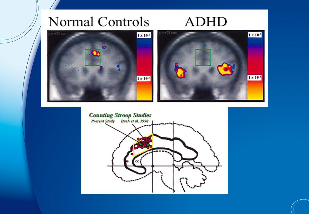 Déficits neuropsychologiques multiples MesocorticalMesolimbic Nigrostriatal Dysfonctionnement des branches dopaminergiques TDAH Dyséxécutif Déficit attentif et faible organisation du comportement TDAH Motivationnel Anomalies mécanismes de récompense (dysrégulation socio- émotionnelle) TDAH Dysmétrique Maladresse et apprentissages non déclaratifs inefficaces Drogues Génétique Toxines Sagvolden T, 1999