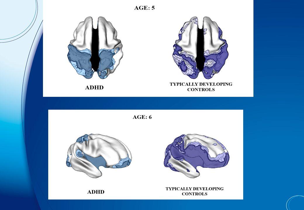 Circuit ventral dlPFC/vlPFC STRIATUM VENTRAL OFC/MFC Circuit dorsal «Cool» cognition «Hot» cognition Valeur subjective « Saillance » Prise de décisions affective Circuits de contrôle cognitif Thalamus Contrôle moteur CMP STRIATUM DORSAL