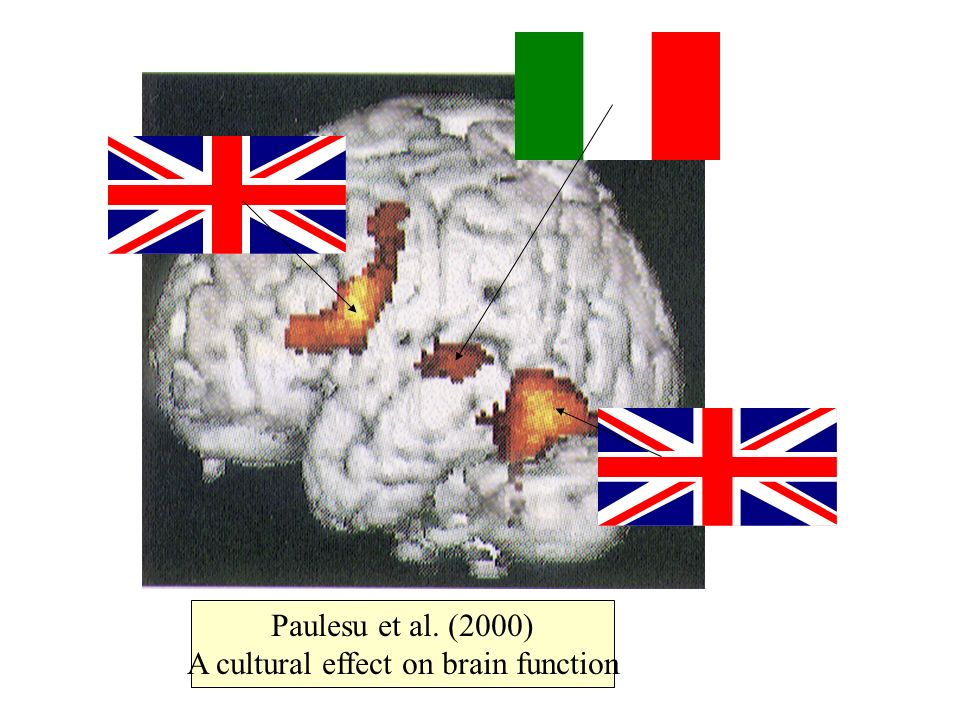 Paulesu et al. (2000) A cultural effect on brain function