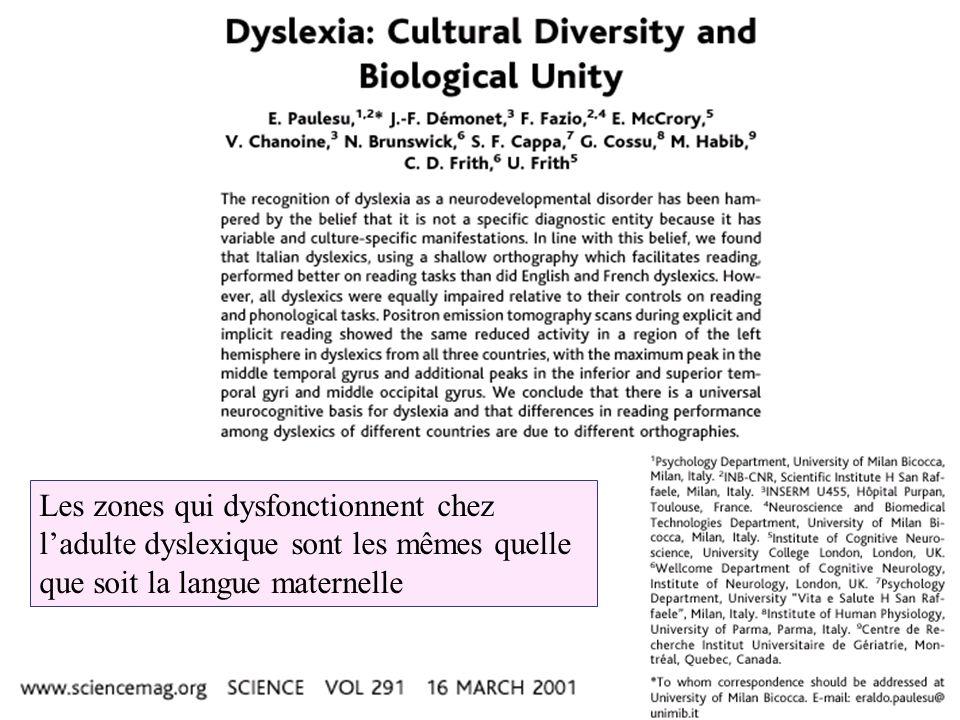 Les zones qui dysfonctionnent chez ladulte dyslexique sont les mêmes quelle que soit la langue maternelle