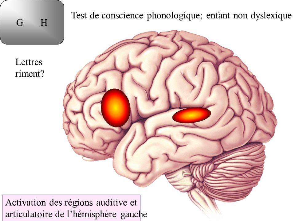 Lettres riment? Test de conscience phonologique; enfant non dyslexique Activation des régions auditive et articulatoire de lhémisphère gauche T DG H