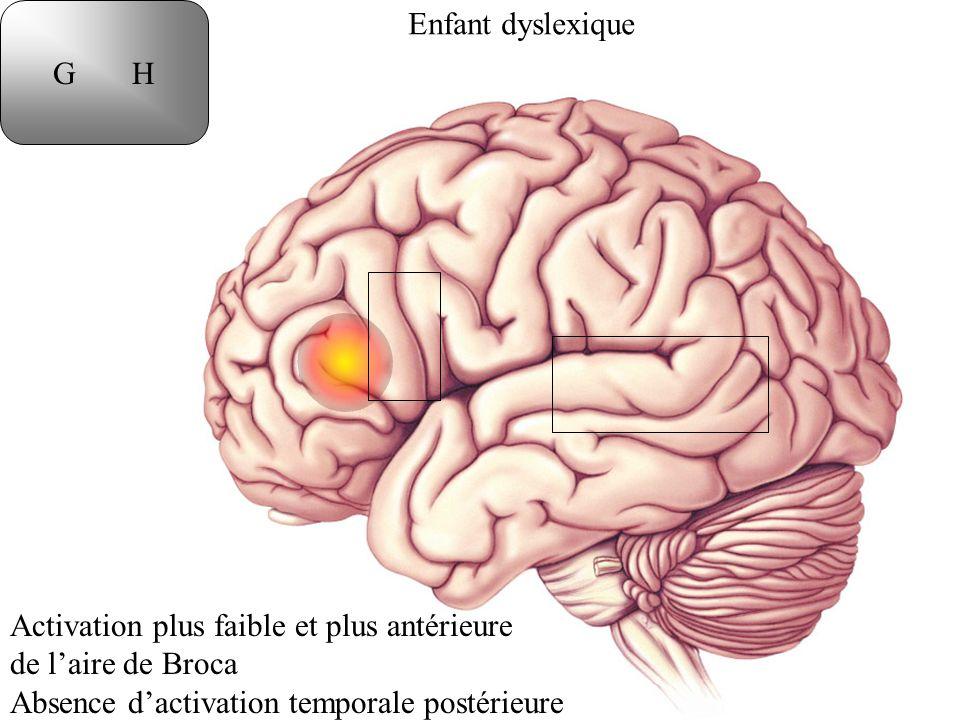 Enfant dyslexique G H Activation plus faible et plus antérieure de laire de Broca Absence dactivation temporale postérieure