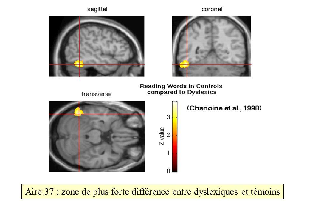 Aire 37 : zone de plus forte différence entre dyslexiques et témoins