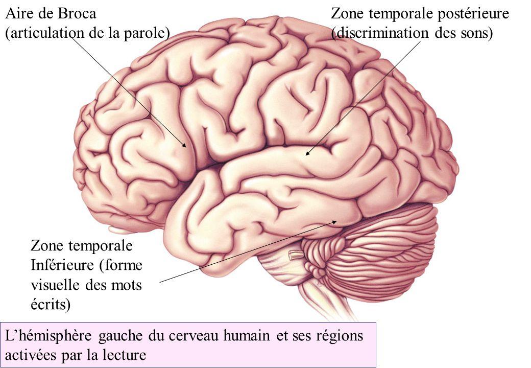 Lhémisphère gauche du cerveau humain et ses régions activées par la lecture Aire de Broca (articulation de la parole) Zone temporale postérieure (disc